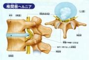 椎間板ヘルニア資料[1].jpg